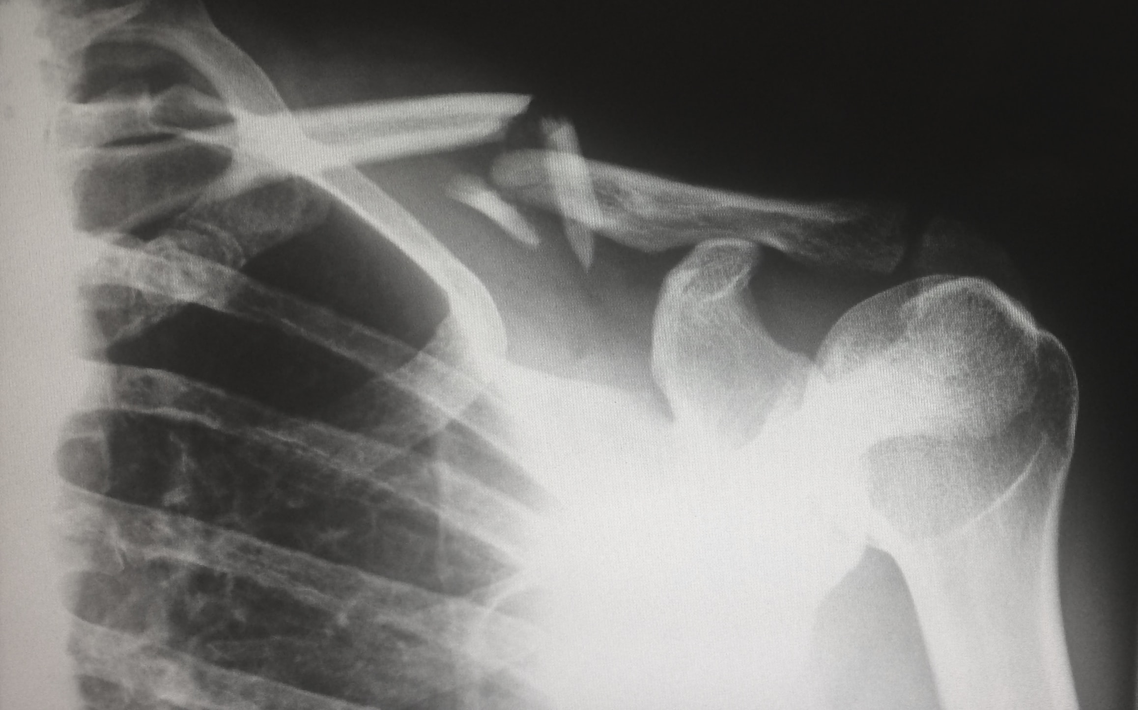 Οστεοπόρωση: πρόληψη και θεραπεία